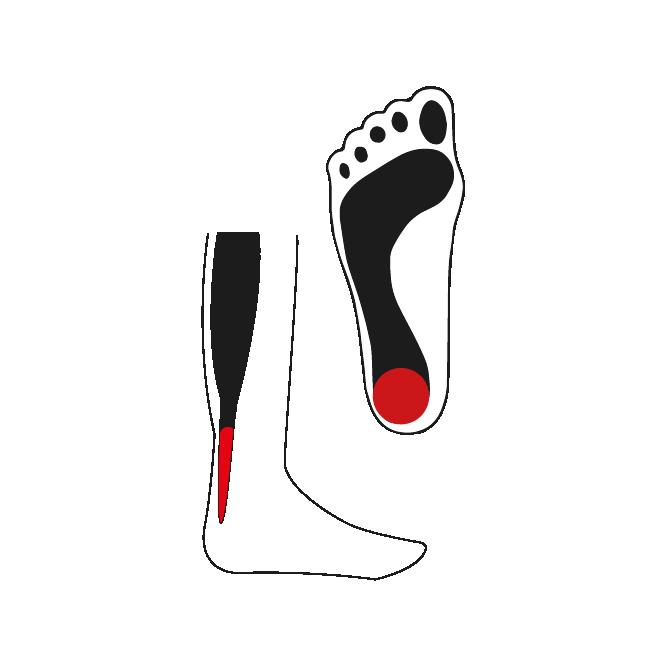 Afbeelding onderkant voet - voetklachten